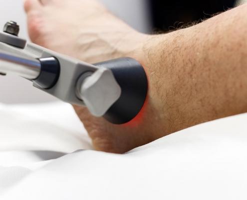 terapija laserom